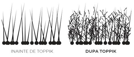 Firul de păr înainte/după utilizarea nanofibrelor Toppik