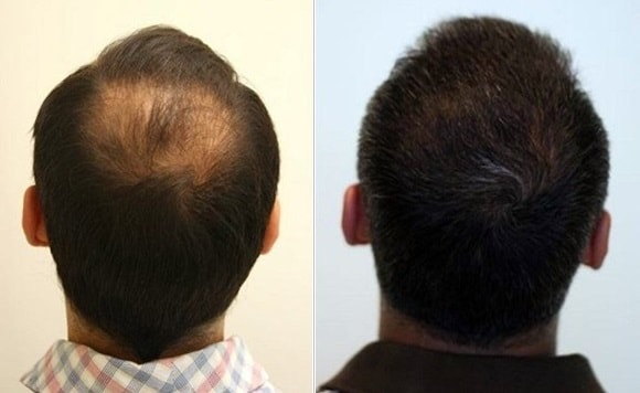 Rezultate foto de la clienti Toppik Romania